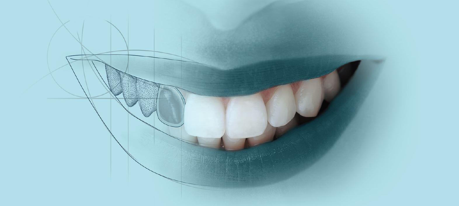 лазерное отбеливание зубов череповец